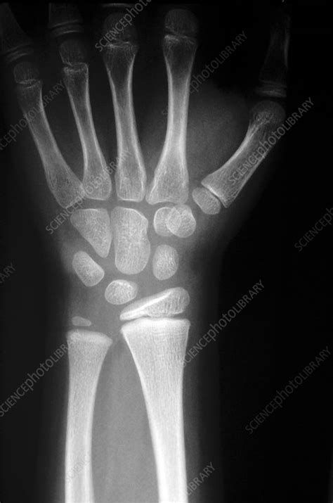 X-ray of the bones in the human wrist - Stock Image P116