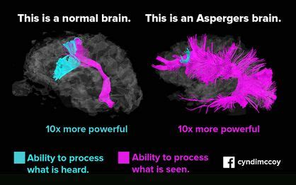 Asperger Syndrome - Physiopedia